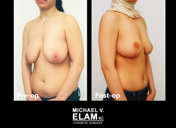 Breast Reduction 1