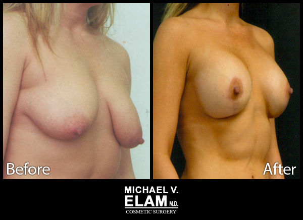 Mastopexy (Breast Lift) 6
