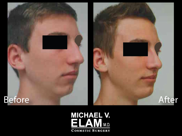 Chin Augmentation 2