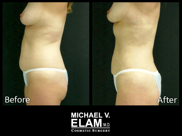 liposuction-3